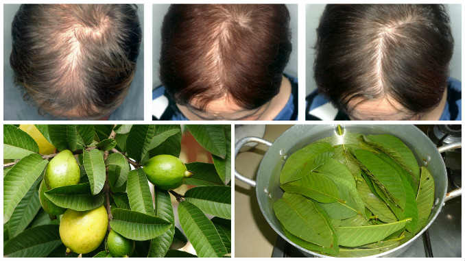 Guava Leaves Can Stop Your Hair Falling