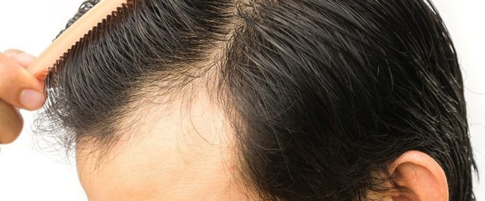 Get An Amazing Outlook with the Best Hair Transplant