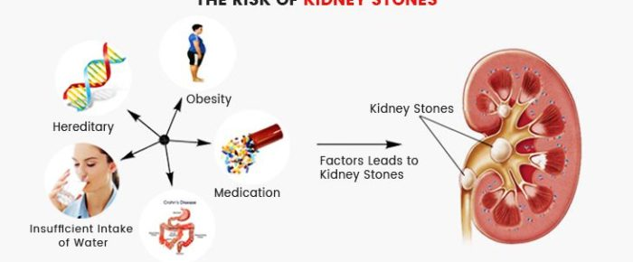 How to Minimize The Risk of Kidney Stone?