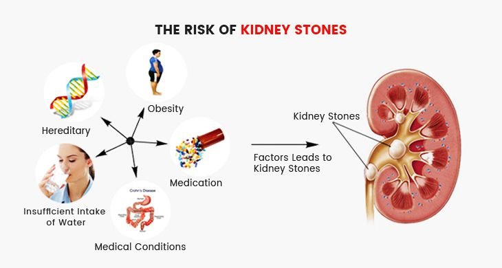 the-risk-of-kidney-stones-anatomy
