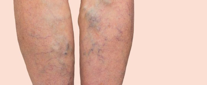 Why Varicose Veins Are More Than Just a Cosmetic Issue